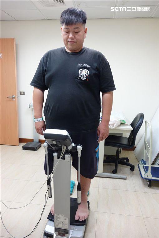 高血壓,糖尿病,大林慈濟醫院,減重,縮胃手術,減肥圖/大林慈濟醫院提供