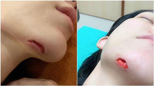 藝人「范范」范瑋琪今(5)日凌晨又傳出跌倒的消息,她在IG上貼出血淋淋的傷口照,可以看到她的下巴有一塊肉被掀起,似乎傷的不輕,范范也表示傷口已經縫了15針,目前無大礙,還拍照跟粉絲報平安,敬業的她更說今日將如期出席預定的時尚活動。(圖/翻攝自范瑋琪IG)