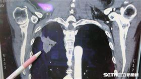 醫師許嘉方替患者吳先生作X光檢查發現,其右上肺有陰影。(圖/彰化醫院提供)