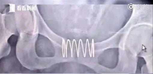 三寶媽「5cm彈簧塞下體」避孕…結果又懷第四胎 醫傻了圖翻攝自看看新聞