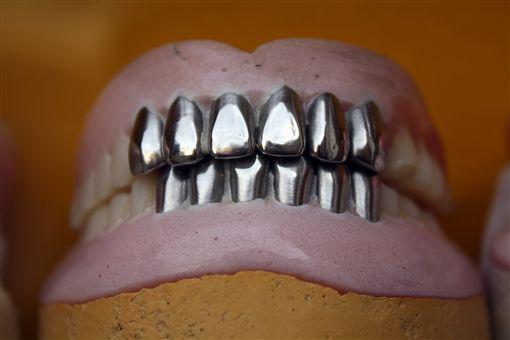 牙醫,假牙,齒模,全口重建,牙科(示意圖/pixabay)