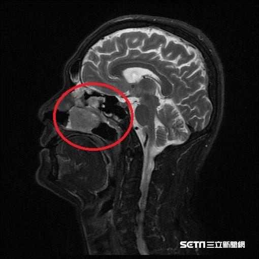 紅框處為鼻竇惡性腫瘤把鼻腔塞滿,導致患者嚴重鼻塞。(圖/南投醫院提供)