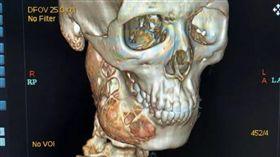 牙痛一年…男下頜被細胞瘤「吃一半」(圖/翻攝自新藍網)