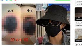 泰國,整型,乳頭,胸部,發黑(圖/翻攝自sanook)