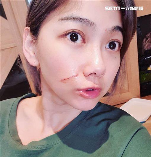 邵庭還原被貓抓傷臉濺血真相 圖片提供:POPOLA X 邵庭