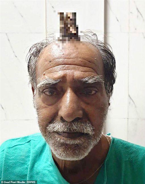 印度,惡魔角,老翁,皮脂角,剃刀https://twitter.com/EyeWitness101/status/1174181130641256451