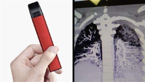 電子菸,菸油,肺病,美國,賓州(圖/翻攝自微博;臉書)