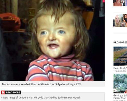 俄羅斯,畸形,幼稚園,女孩,手術https://www.mirror.co.uk/news/world-news/disabled-girl-banned-nursery-her-20174097
