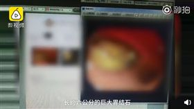 (圖/翻攝自梨視頻)中國,南昌,芒果,胃結石,可樂
