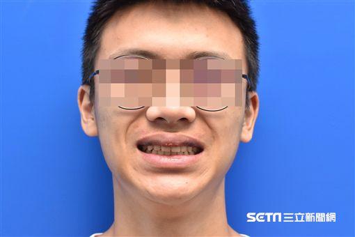 一名男大生在打籃球時不慎被朋友的手肘撞傷,隔天早上睡醒後發現雙唇腫大還變色。(圖/賴昕隄醫師提供)