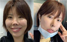 金老佛爺拿下口罩,展現了鼻子剛拆線、拆繃帶後的最新狀況/整容/手術/假體。翻攝自IG