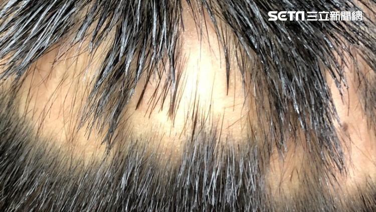 獨/「鬼剃頭」上身 卅歲女頭髮、睫毛、陰毛、腋毛掉大半