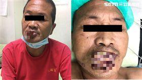 唇癌,腫瘤,膿包,潰爛,發臭(圖/衛生福利部南投醫院提供)