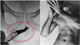 22歲男「拿鑷子塞尿道」!醫問了才鬆口:已經4年了…(圖/翻攝自Science Direct)https://www.sciencedirect.com/science/article/pii/S2214442019300154