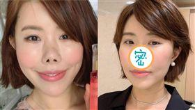 南韓知名部落客、台灣媳婦「金老佛爺」(金楨美)/鼻子整容手術後照片。翻攝IG