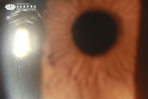 台北慈濟醫院,眼科部,徐維成,白內障,高度近視圖/翻攝自台北慈濟醫院官網