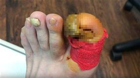 (圖/翻攝自Healthy Feet Podiatry YouTube)指甲,變形,拔除