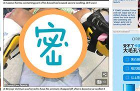 男子孫袋腫到發爛。(圖/翻攝自《每日郵報》) https://www.dailymail.co.uk/health/article-7579765/Man-forced-scrotum-CHOPPED-swollen-dangled-KNEES.html