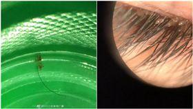 大陸女童玩沙,眼睛感染十幾隻活生生的「陰蝨」。(圖/翻攝自江蘇新聞 微博)
