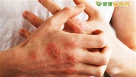 乾癬性關節炎的關節變形無法回復,患者應定期安排X光或超音波等較深層的檢查, 對乾癬性關節炎多一分認識與警覺,預後大不同。