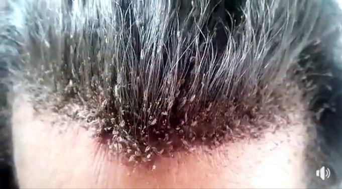 影/「百萬頭蝨」在頭髮間亂竄 網崩潰:看得我頭皮發麻