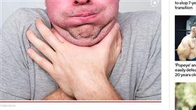塑膠片,美國,蛋糕,阿伯,手術,食道穿孔 https://nypost.com/2019/10/23/man-didnt-notice-2-inch-cupcake-topper-lodged-in-throat-for-a-week/