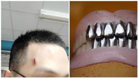 老婆婆打噴嚏…假牙飛出!他額頭遭砸縫4針 網笑:牙起來(圖/翻攝自Dcard、PIXABAY)