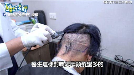 酷炫後面頭髮被剃掉。(圖/莊酷炫(小苦苓)臉書授權)