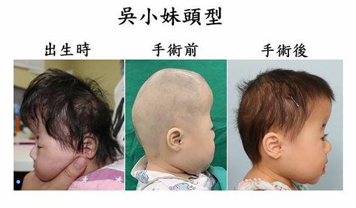 女嬰,頭型,辛普森家庭,罕病作祟,健康(圖/長庚醫院提供)中央社