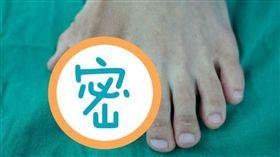 大陸,腳趾,多趾畸形,算命。(圖/翻攝自廣州日報)