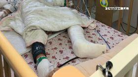 車禍童斷腿1800