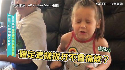 ▲妹妹剛拔完牙驚嚇到的臉。(圖/AP/Jukin Media授權)