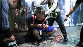 反送中/流血衝突!示威議員左耳遭暴徒咬掉狠甩 血濺滿地 圖/立場新聞