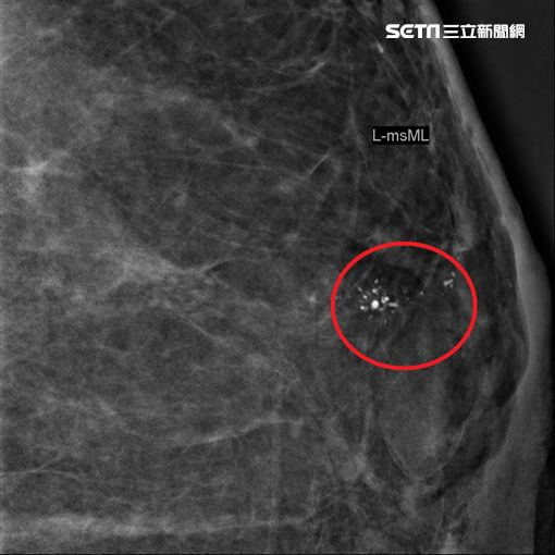 烏日林新醫院,乳房外科,吳玉婷,超音波,鈣化,乳房X光,乳癌圖/烏日林新醫院提供