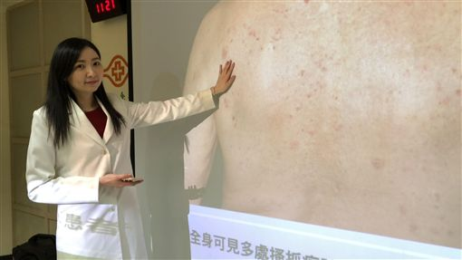 免疫治療冒皮膚副作用 研究:存活期增2.1倍林口長庚醫院皮膚科醫師吳吉妮(圖)與美國史隆.凱特琳癌症中心攜手研究發現,若癌症患者接受免疫治療出現皮膚副作用,可能是藥物有效的表現,平均存活期比沒有此副作用者高出2.1倍。中央社記者張茗喧攝 108年11月12日