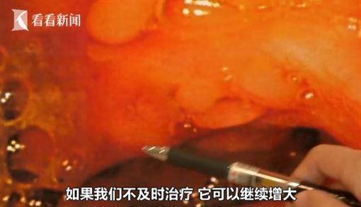 愛吃重鹹!男腸道長60多顆肉色珍珠(圖/翻攝自看看新聞)