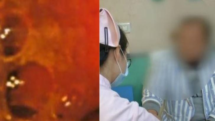 男腸道長60多顆「肉色珍珠」 醫揭致命壞習慣:吃辣重鹹