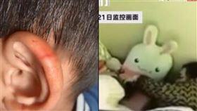 5歲男童午休不睡覺被剪刀削耳! 女老師辯:只是想嚇嚇他(圖/翻攝自騰訊新聞)