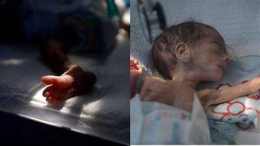 嬰兒,葉門,Yemen,骷髏,內戰,空襲,飢餓,營養不良,戰爭,孕婦, 圖/翻攝自推特
