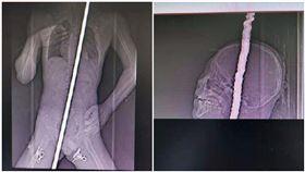 13歲男墜樓!身體遭4公尺鋼筋刺穿 「心臟一縮」逃死劫(翻攝自天眼新聞)