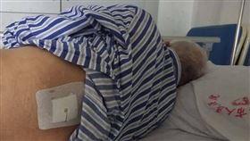 72歲翁腎結石手術!醫生「搞錯」開左腰:免費開第二次(圖/翻攝自微博)
