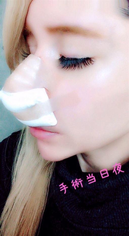 田崎繪里香,田崎エリカ,整形 圖/推特