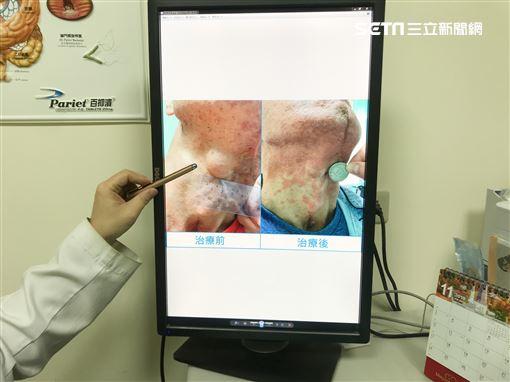 烏日林新醫院,血液腫瘤科,林增熙,口腔黏膜型惡性黑色素瘤,頷骨,惡性皮膚癌