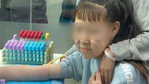 皺紋,衰老,少女,除皺,募捐,手術,老人,遺傳,基因,DNA,皮膚, 圖/翻攝自微博