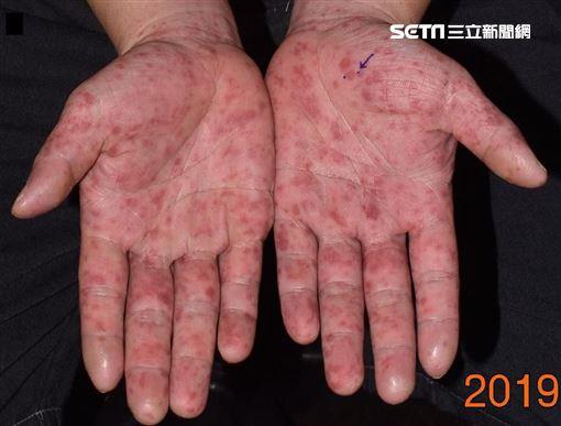 成大醫院,皮膚部,劉威廷,紅疹,腸病毒,非典型手足口病,水泡