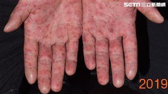 28歲男燒整天、冒水泡 竟是腸病毒