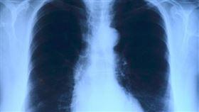 肺部(Pixabay)