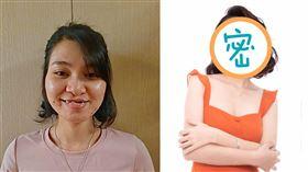 越南兔唇女「被批不祥」!求職被拒 整形後逆轉 Tình Tũn臉書