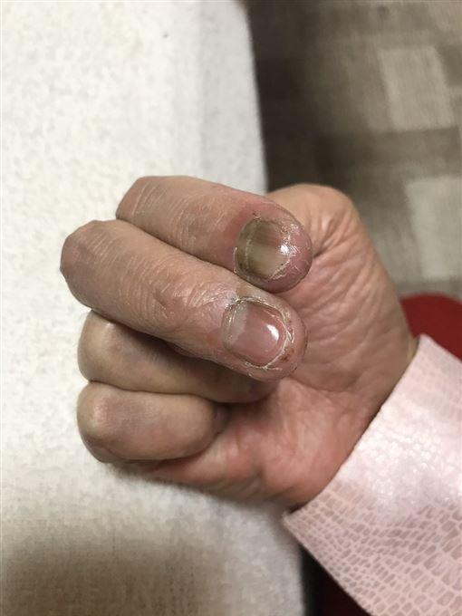 整隻黑掉…加藤鷹60歲現況曝 名器「金手指」已破爛不堪 圖/翻攝自加藤鷹推特