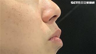 男鼻子變大臉變形 檢查發現長垂體瘤